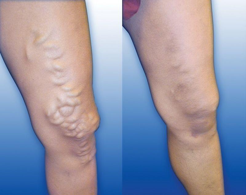 destinați cu picioare varicoase