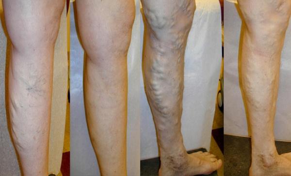 varicoză picioare la femei