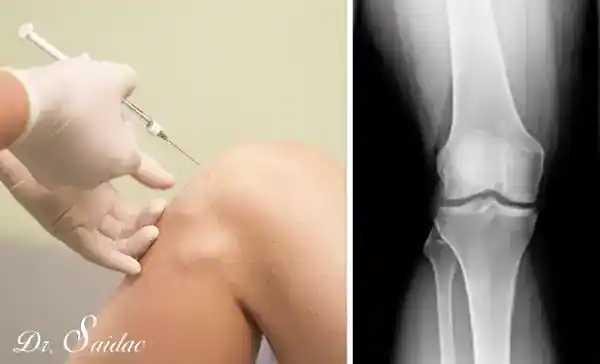 Infiltratii cu acid hialuronic in genunchi | testereparfum.ro