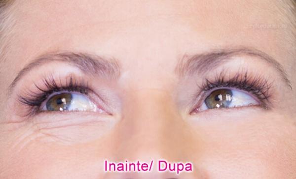 varicoză și umflare sub ochi)