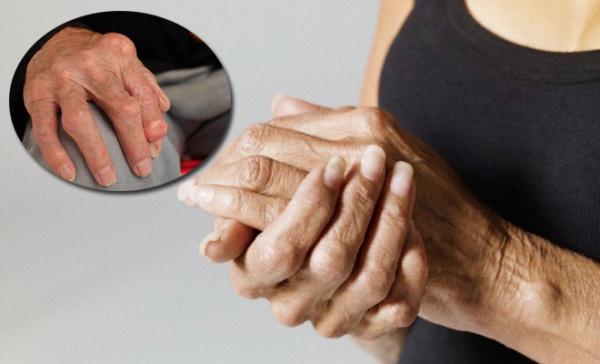 tratament articular în naftalan Pot simți simptomele articulațiilor șoldului