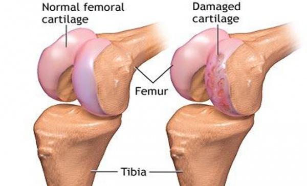 Durere in simptomele coloanei vertebrale sacrale